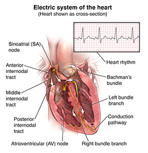 Illustration of a cross section of the heart and electrical pathways. Inset box shows normal heart rhythm